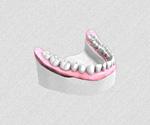 Mise en place des implants dentaire