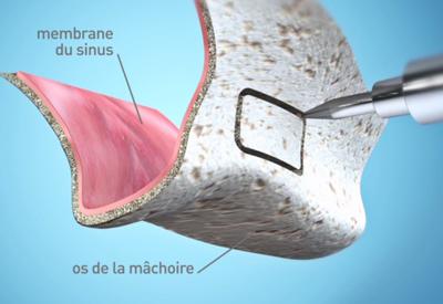 Réalisation d'un volet sur la face antérieur du sinus