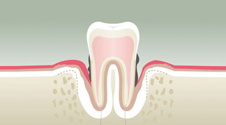 Parodontologie Stade 4